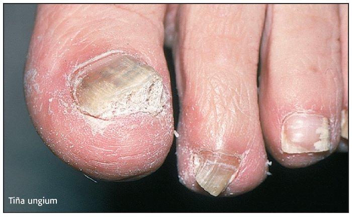 El hongo de las uñas el foro