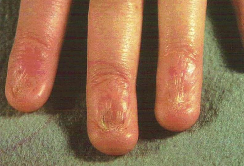 Enfermedades en las uñas | Decoracion de uñas | Página 5
