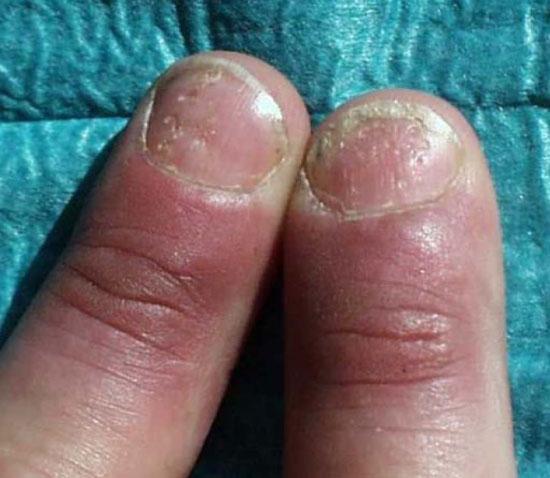 El tratamiento que se exfolia de los lechos las uñas