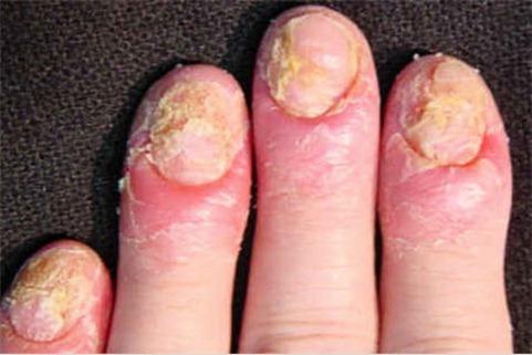 enfermedades causadas por hongos