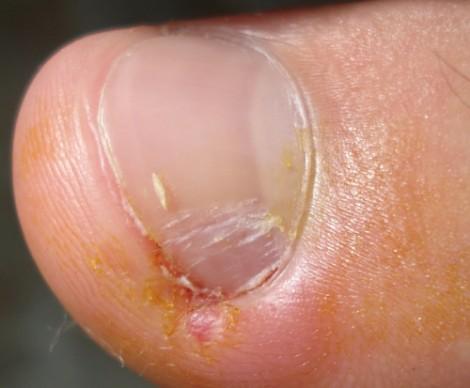 Que ungüento ayuda del hongo de la piel